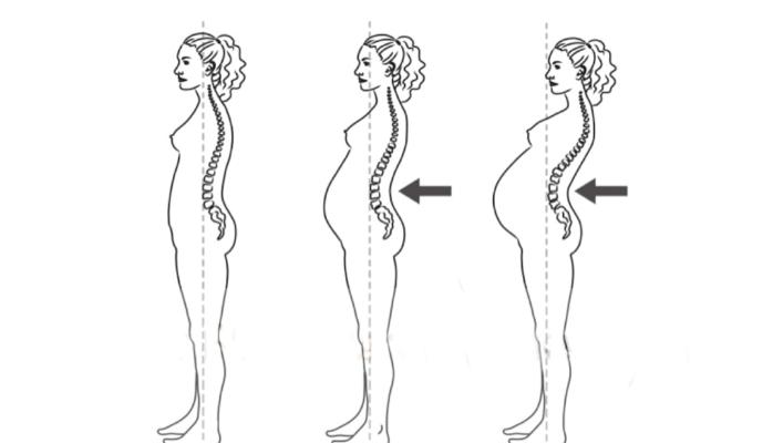 Hamilelikte Bel Ağrıları İçin Tavsiyeler