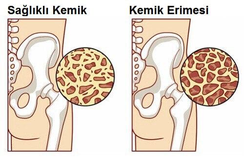 Kemik Erimesinin Bilinen ve Bilinmeyen Sebepleri