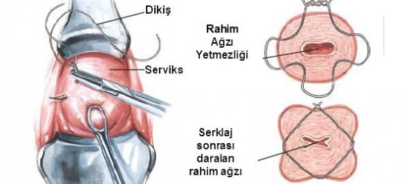 Rahim Ağzına Dikiş Atma Ameliyatı(Servikal Serklaj) Nedir? (Videolu)
