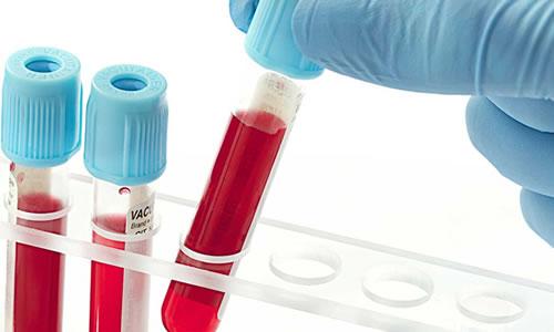 Myom teşhisinde kan tahlili ve smear testi kullanılır mı?