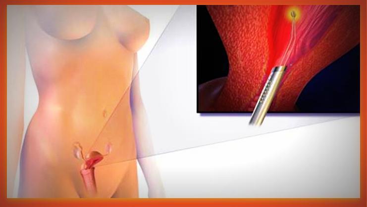 Endometrial Ablasyon (Rahim İç Zarının Alınma İşlemi)
