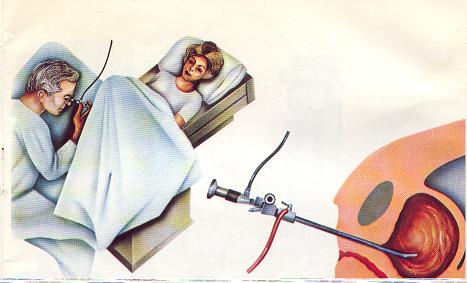 Kadınlarda Sistoskopi Neden ve Nasıl Uygulanır?