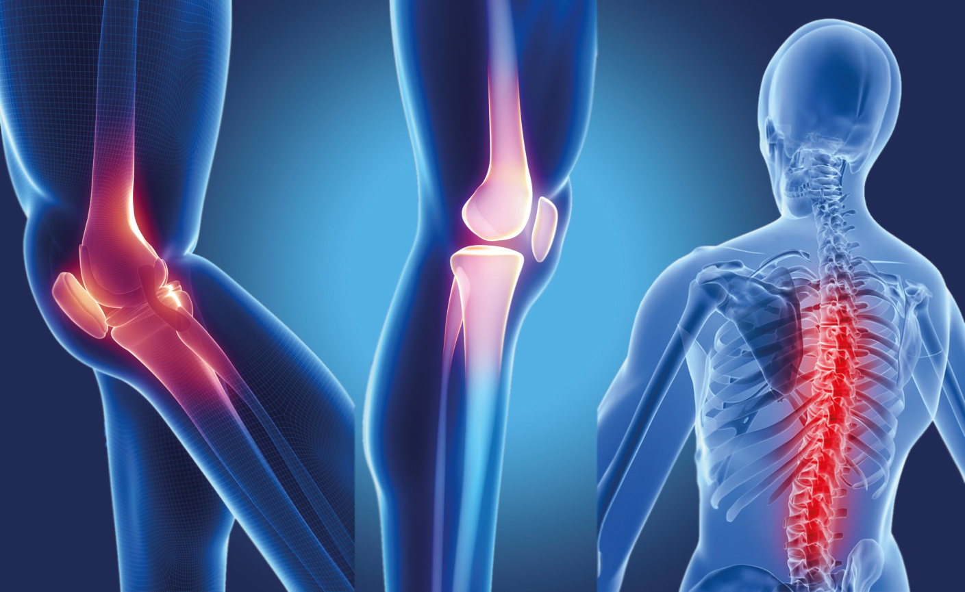 Kemik Erimesinde İlaç Tedavileri