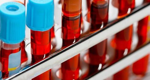 Tam Kan Sayımı (Hemogram-CBC) ve Hamilelik
