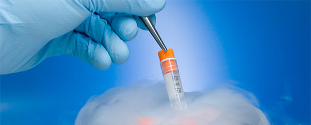 Sperm Dondurma İşlemi Hangi Durumlarda Uygulanmaktadır?