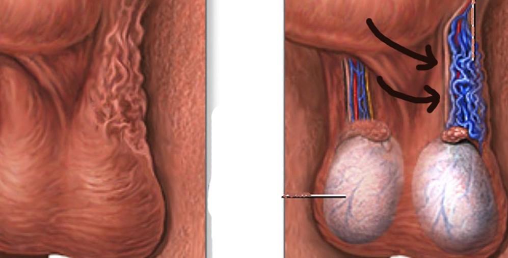 Testislerde Damar Genişlemesi (Varikosel)