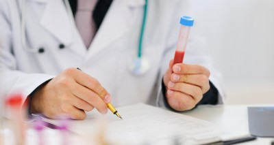 Closeup on hands of medical doctor holding blood sample and making notes