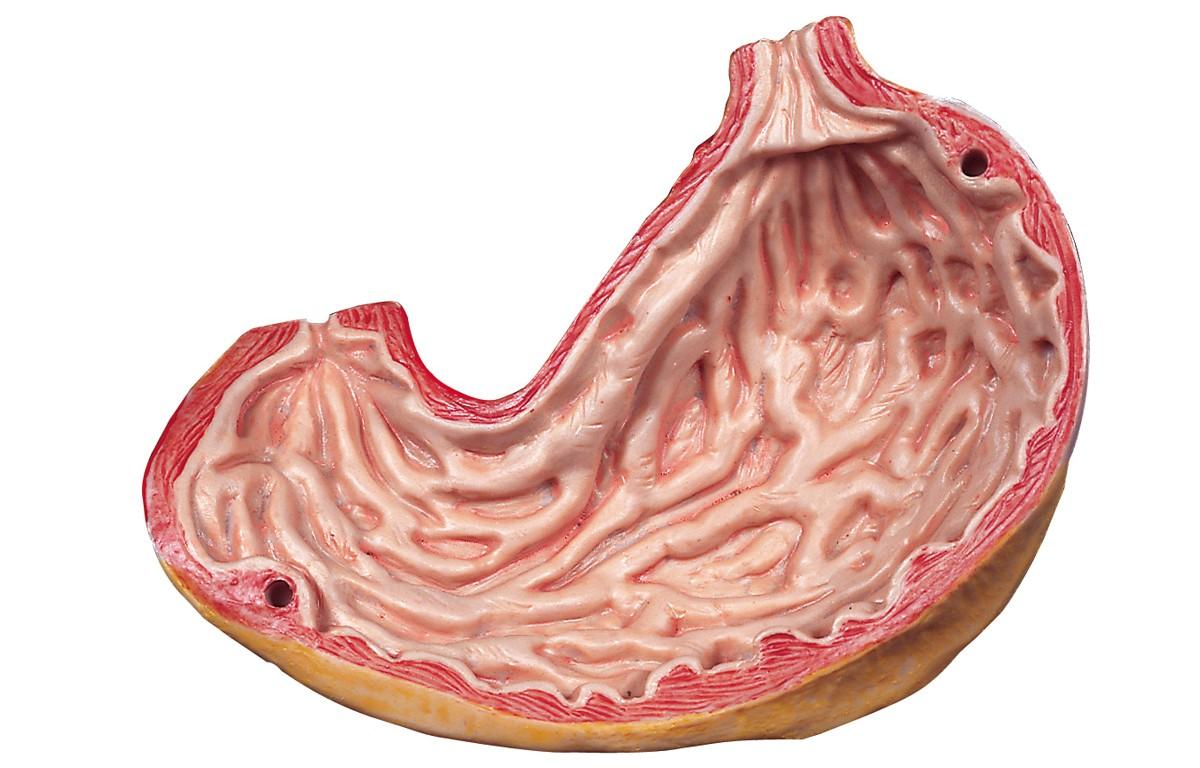 Hamilelikte Gastrit ve Ülser